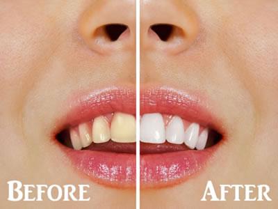 Dental Cleaning, Ashburn, VA